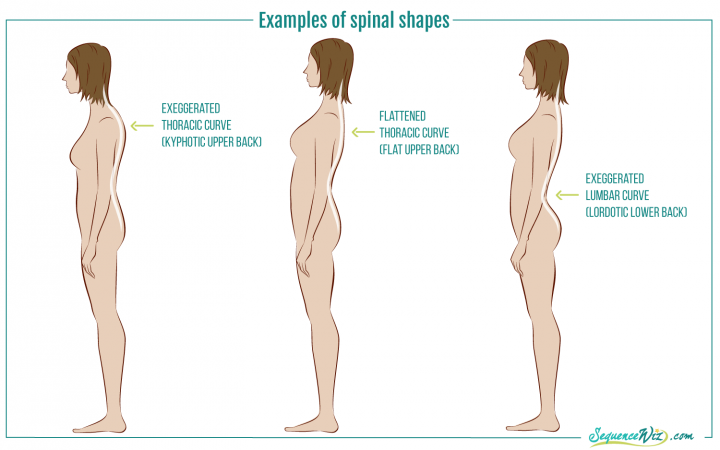 Illustration of posture types: exaggerated thoracic curve (kyphotic upper back), flattened thoracic curve (flat upper back), and exaggerated lumbar curve (lordotic lower back)