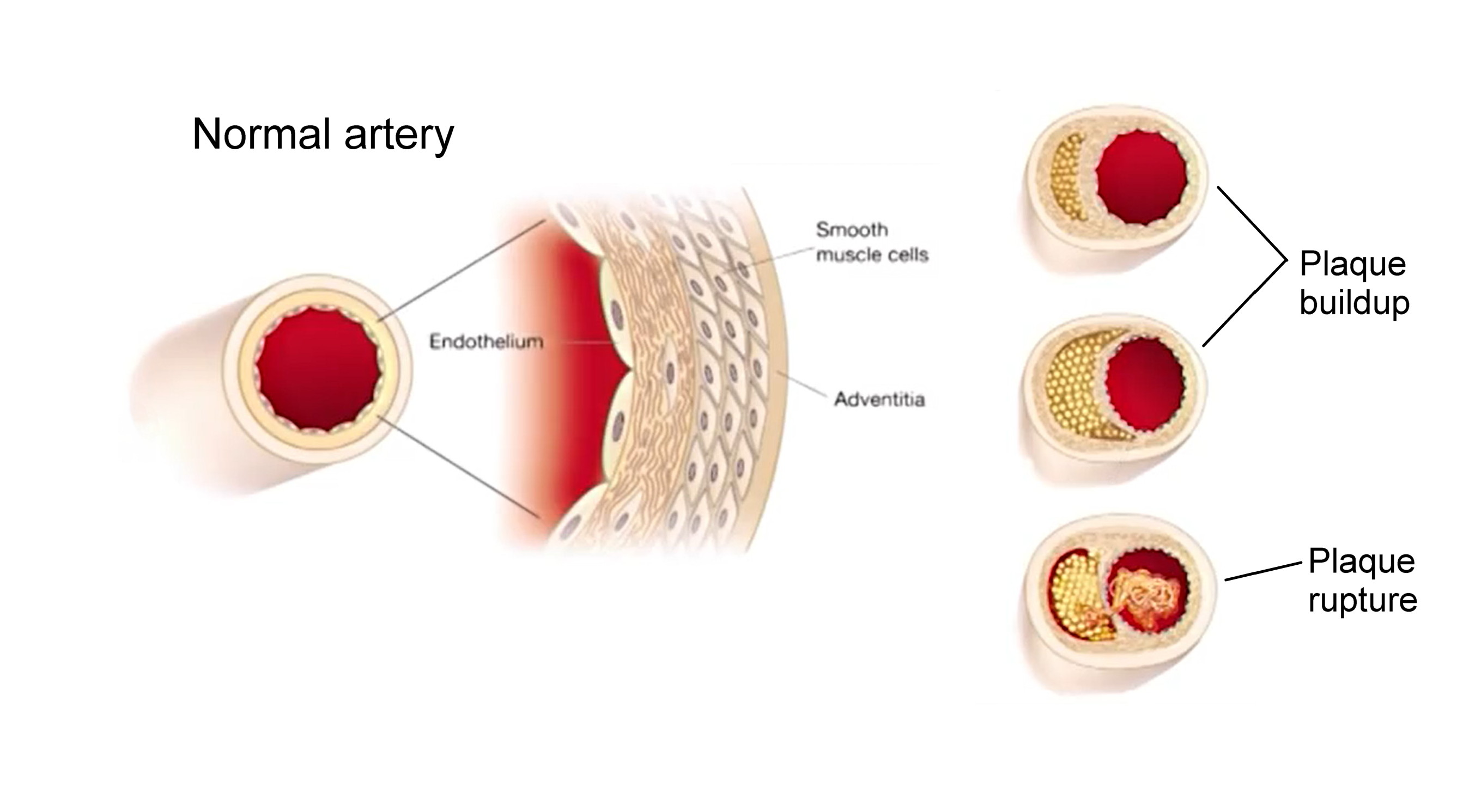 Normal artery, arteries with plaque, health implications of plaque on arteries