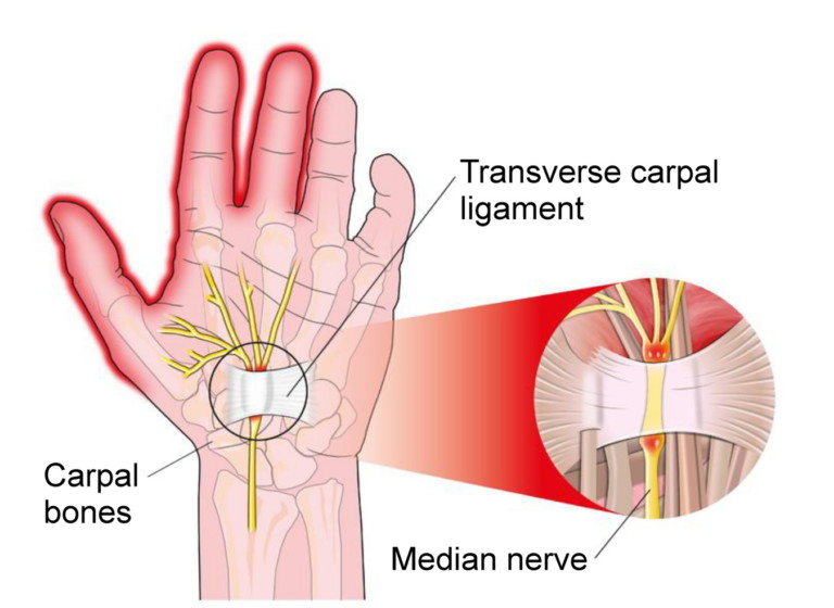 Carpal Tunnel, anatomy of the pinched nerves, yoga for carpal tunnel syndrome