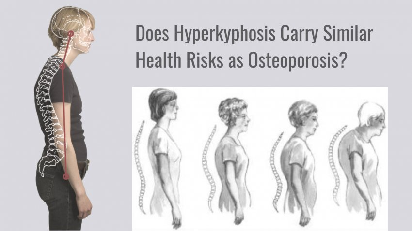 drawing showing the spine in forward head posture and hyperkyphosis